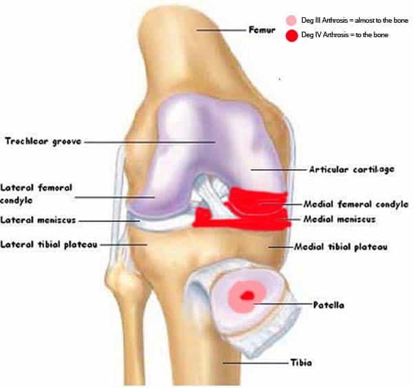 Osteoarthritis: My knees