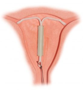 IUD placement