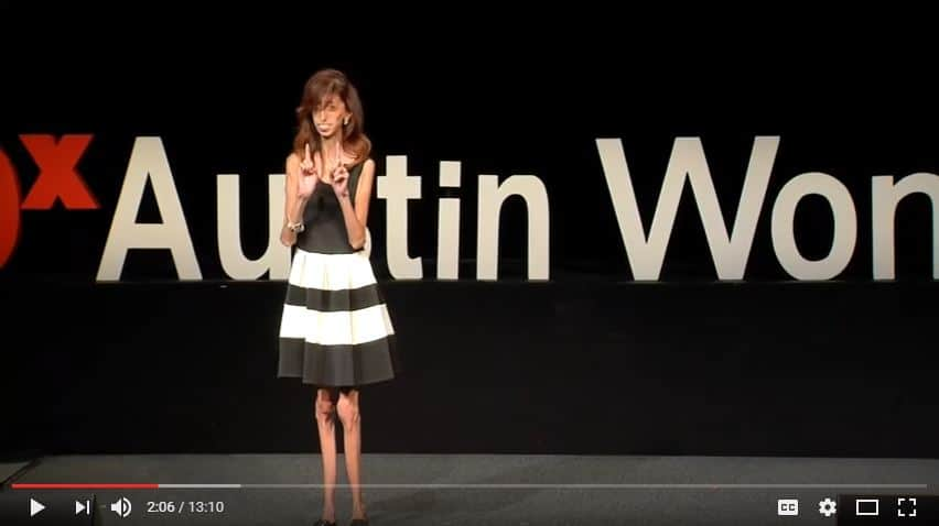 Take a lesson from Lizzie Velasquez